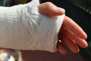 A hand in an cast.